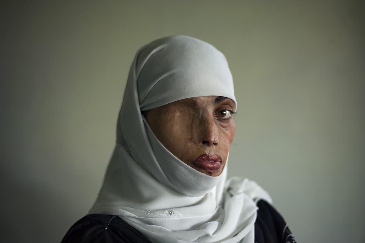 Emilio Morenatti: Busha Shari, attacked with acid by her husband. Islamabad, Pakistan 2008.